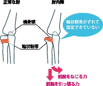 輪状靭帯がずれて、骨を固定できない状態になっている。