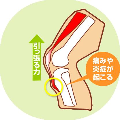 オスグッドの原因は筋肉の炎症