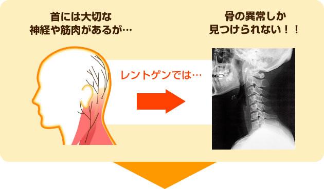 首には大切な神経や筋肉があるが…レントゲンでは骨の以上しか見つけられない!